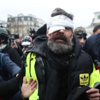 Yellow Vests Conflict: Violence Statistics are Terrifying